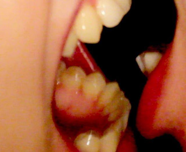 Teeth(Basium VIII)